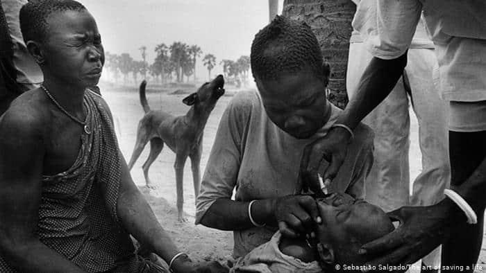 ana yüreği çocuk felci polio