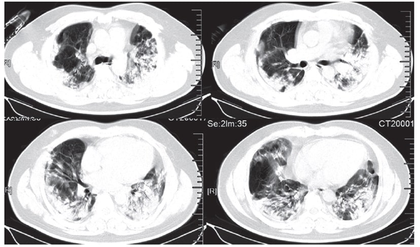Şekil. 40 yaşında erkek hastada yakınmalar başladıktan 15 gün sonra tomografi görüntüsü.