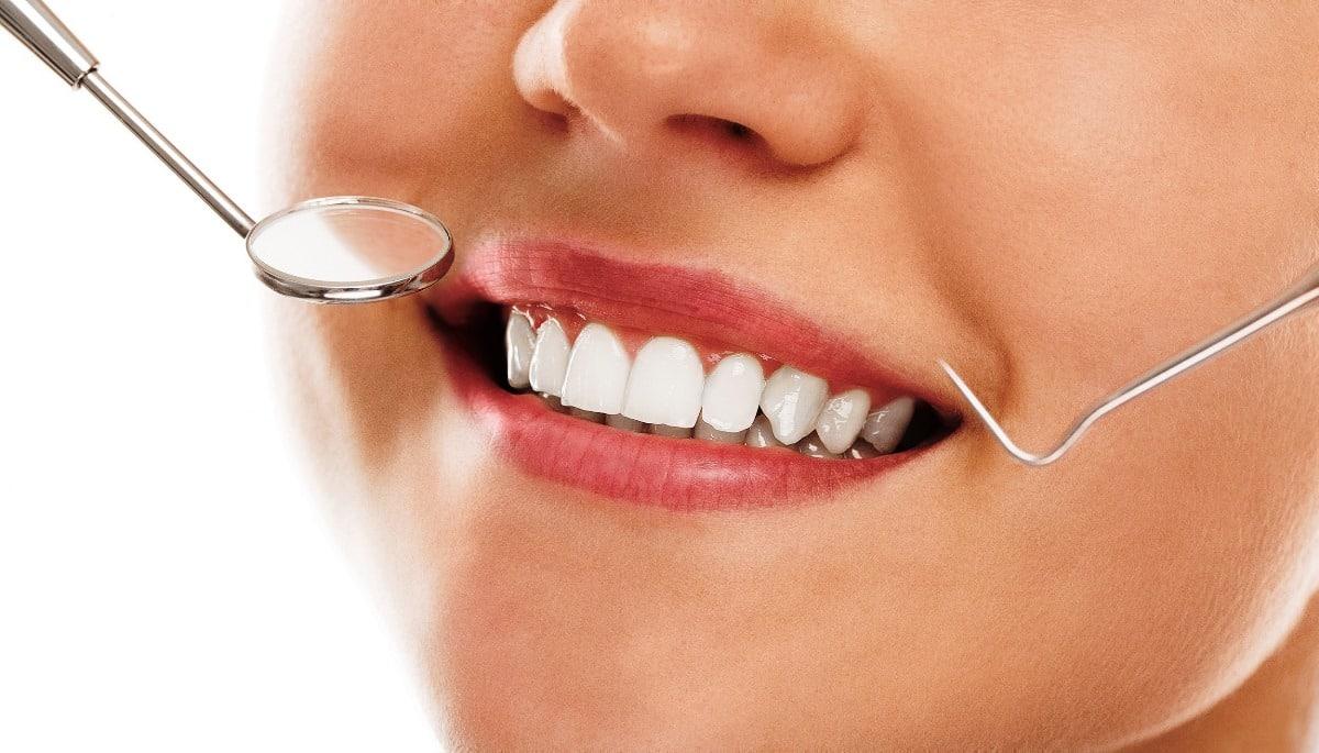 Dental lazer nedir? Diş estetiği ile diş etlerinde etkili tedavi fiyat