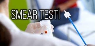 Smear testi nedir? Rahim ağzı kanseri belirtileri neler?