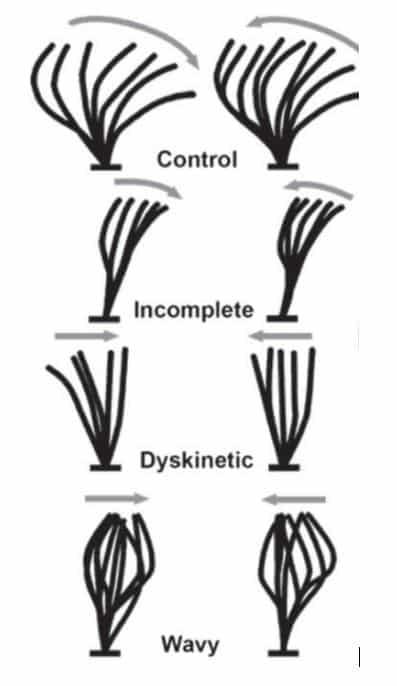 Havayolları mukozasındaki siller (cilia)