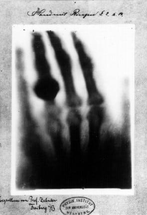 """Şekil. Wilhelm Röntgen'in eşinin eline çektiği, dünyada kaydedilen ilk X-ray. Adı: """"Yüzüklü el"""""""