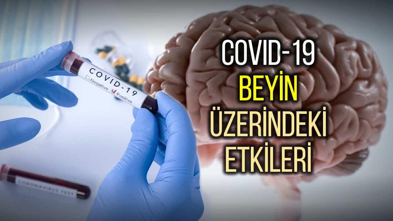 covid 19 beyin sinir sistemi