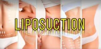 Liposuction etkileri