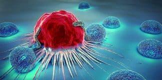 kolon kanseri risk