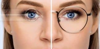 göz lazer ameliyatı