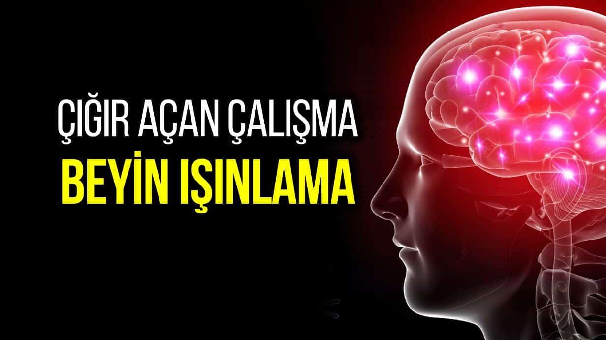 beyin ışınlama