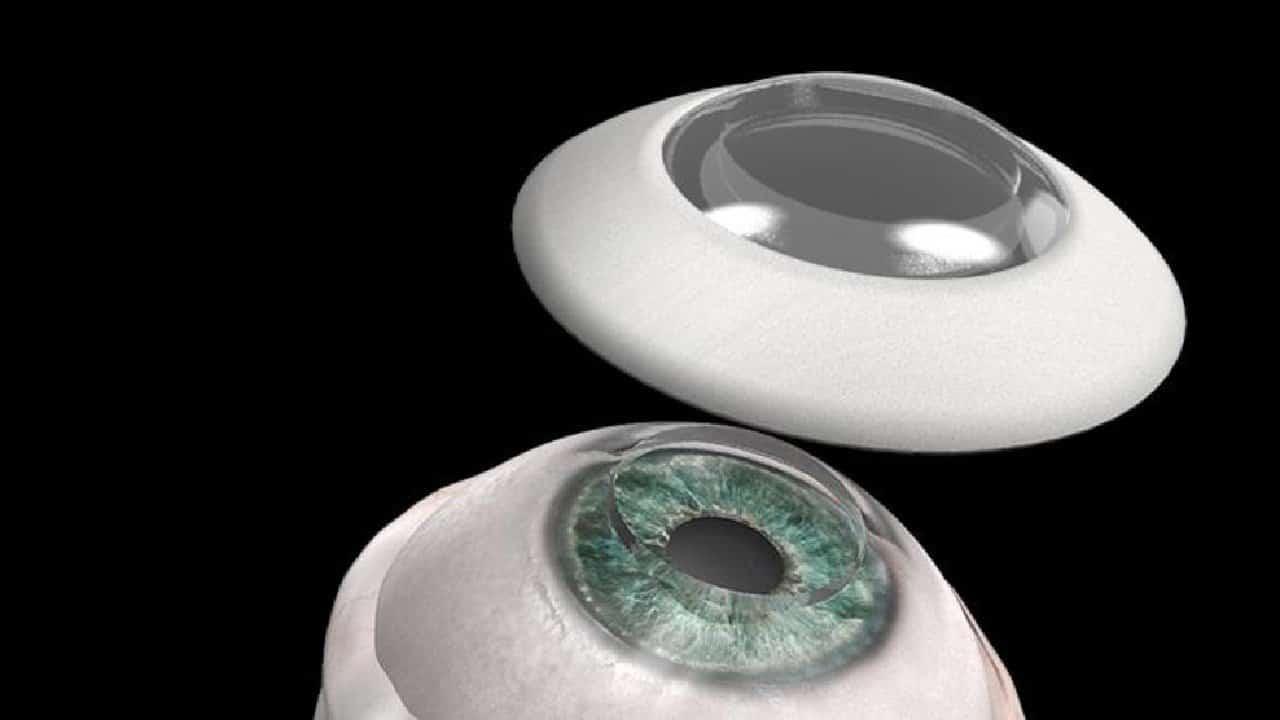 10 yıldır kör olan adam, yapay kornea nakli ile görmeye başladı